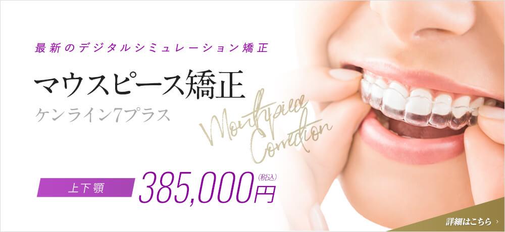 最新のデジタルシミュレーション矯正 マウスピース矯正 ケンライン7プラス Mouthpiece Correction 上下顎 350,000円(税抜)